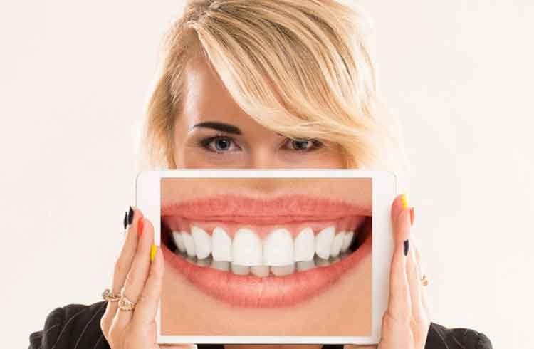 Kaplama Diş Nedir, Nasıl Yapılır