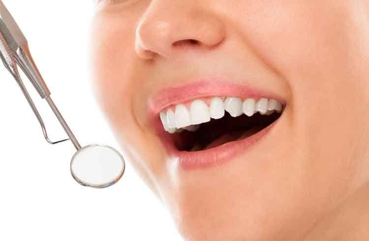 Porselen Diş Kaplama Nedir